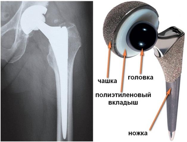 Замена тазобедренного сустава запорожье сближенные скакательные суставы у щенков